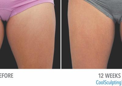 1213-Female-InnerThigh-DrBeaty-CMYK-Medium